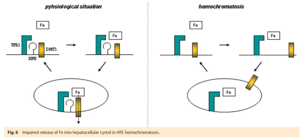 Liver and Iron Metabolism – A Comprehensive Hypothesis for the Pathogenesis of Genetic Hemochromatosis