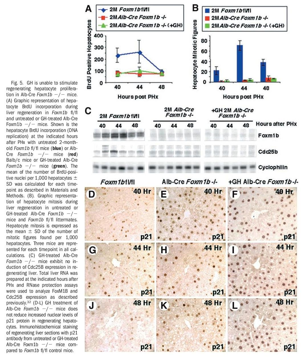 Growth Hormone Stimulates Proliferation of Old-Aged Regenerating Liver Through Forkhead Box m1b