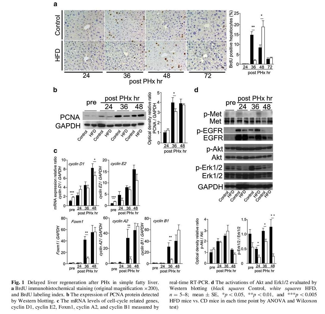 Lipid overloading during liver regeneration causes delayed hepatocyte DNA replication by increasing ER stress in mice with simple hepatic steatosis
